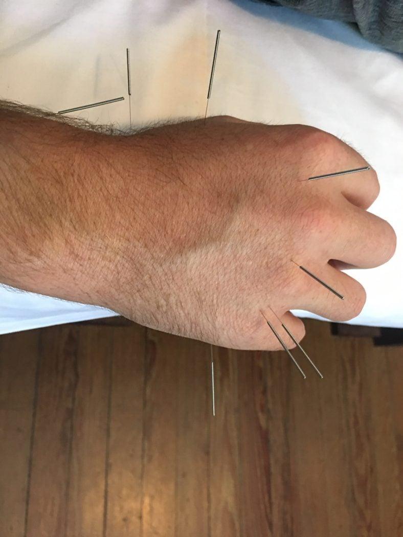 acupuncture buenos aires